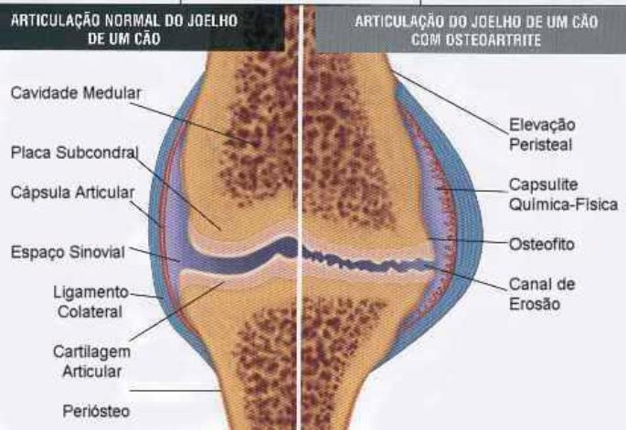 Osteoartrite.jpg